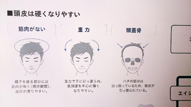 頭皮の展開図画像