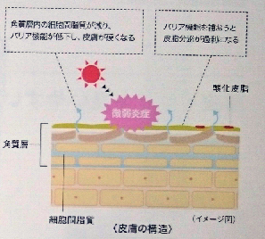 皮膚の構造画像