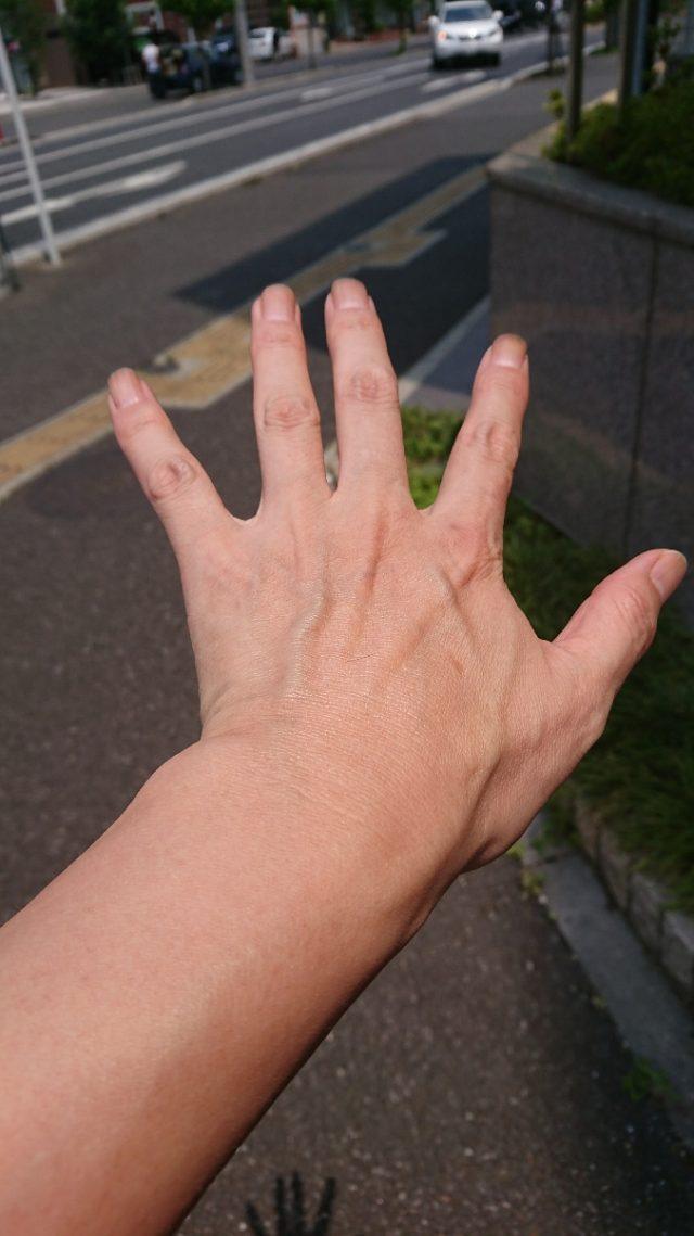 日本人と外国人の皮膚のちがい